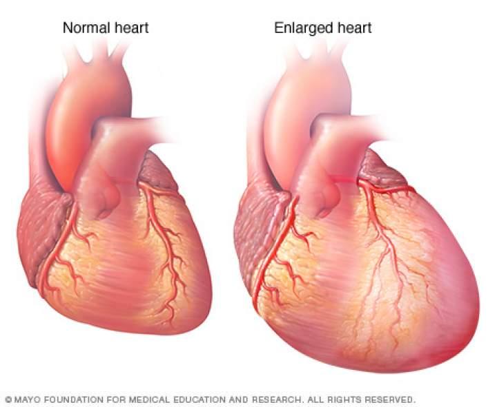 Corazón agrandado por insuficiencia cardíaca